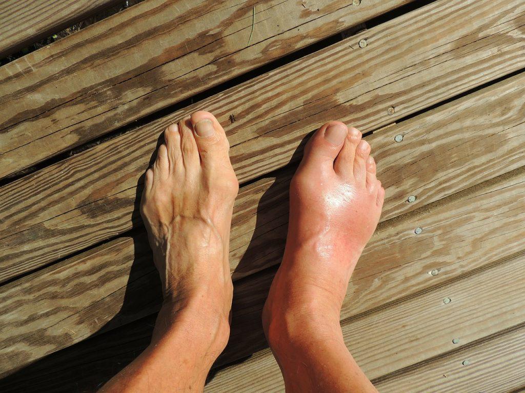 כפות רגליים
