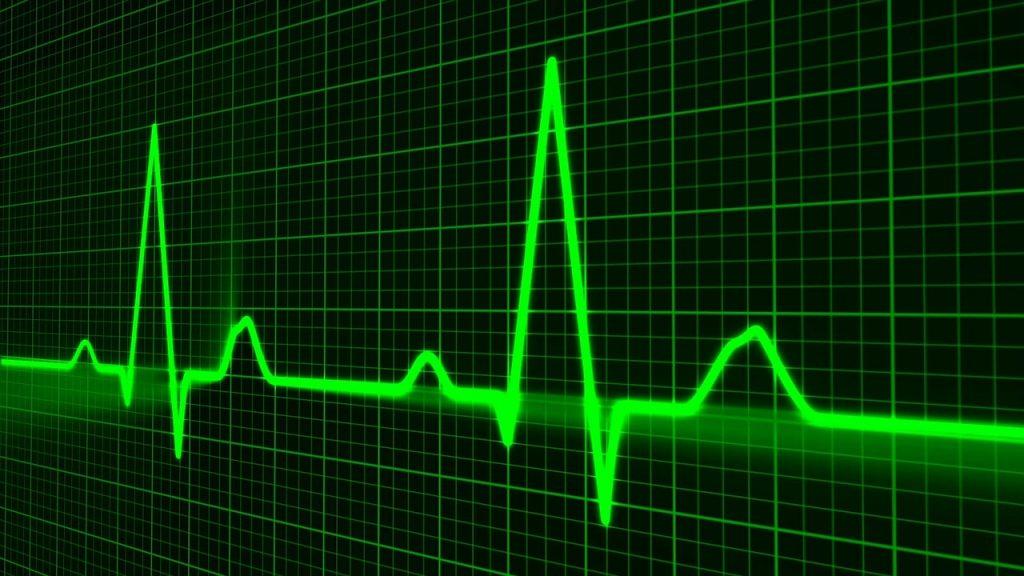 מוניטור שמעיד על רשלנות רפואית
