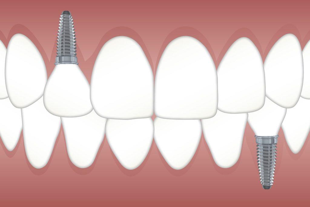 שיניים מושתלות
